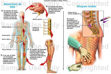 Síndrome de dolor regional complejo (también llamado distrofia simpática refleja)